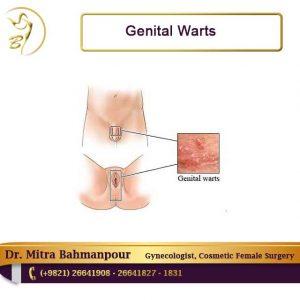 Hpv warts bleeding