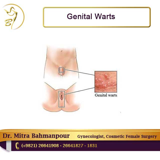 genital wart female