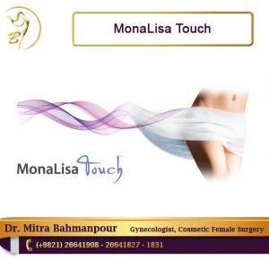 monalisa touch questions