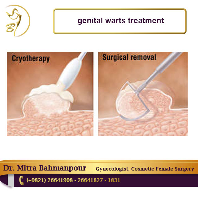 genital warts female treatment