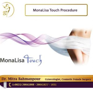 MonaLisa touch procedure